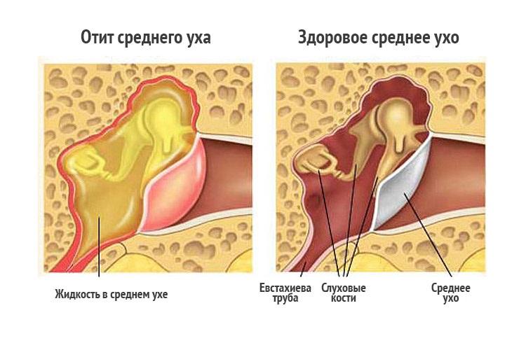 Воспаление ушей лечение в домашних условиях
